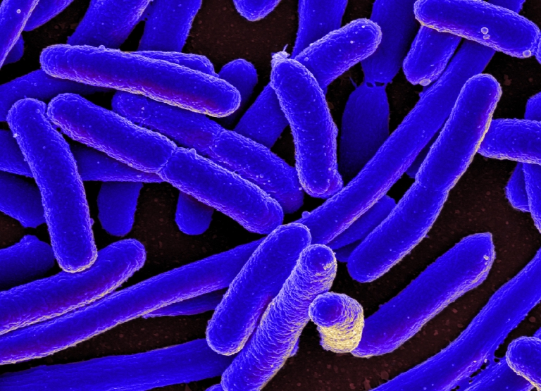 E. coli. (Photo courtesy of the National Institute of Allergy and Infectious Diseases)