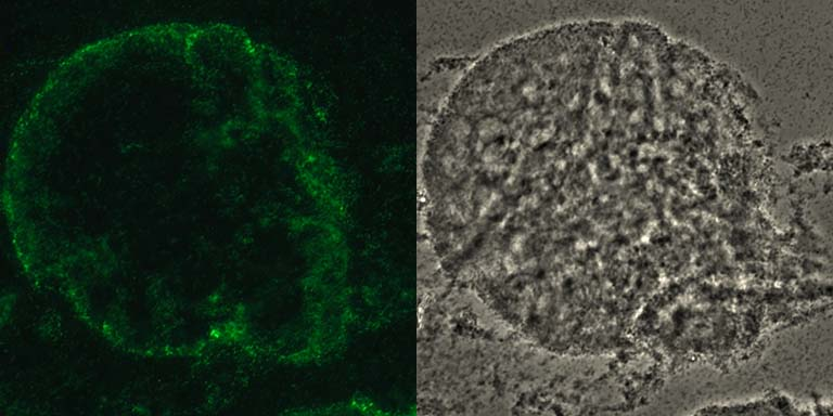 Vibrio cholerae biofilm on a chitin bead stained with a fluorescent DNA intercalating dye to visualize bacterial cells. LEFT: epifluorescence. RIGHT: phase contrast.